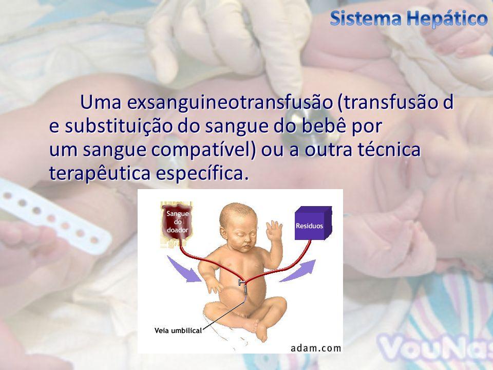 Uma exsanguineotransfusão (transfusão d e substituição do sangue do bebê por um sangue compatível) ou a outra técnica terapêutica específica.