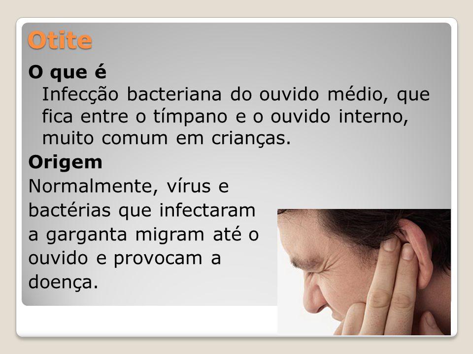 Otite O que é Infecção bacteriana do ouvido médio, que fica entre o tímpano e o ouvido interno, muito comum em crianças. Origem Normalmente, vírus e b