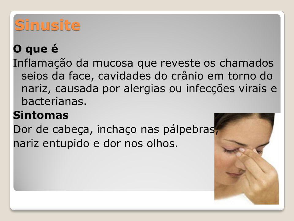 Sinusite O que é Inflamação da mucosa que reveste os chamados seios da face, cavidades do crânio em torno do nariz, causada por alergias ou infecções