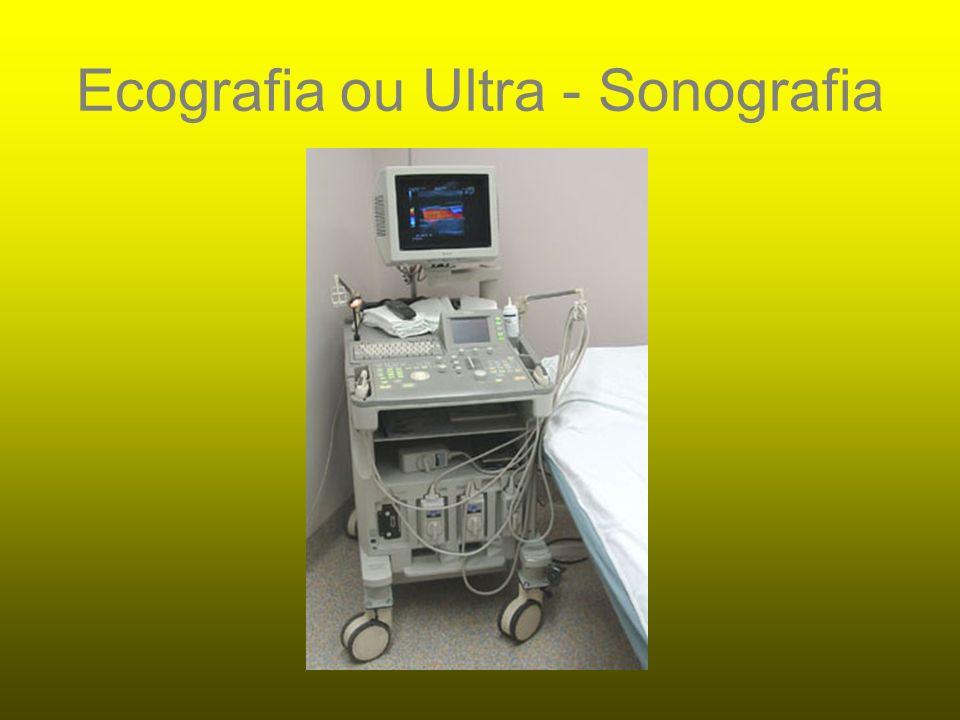 IMPORTÂNCIA USG: ultra-sonografia Contribuição na avaliação de lesões musculares, possibilitando o estudo dinâmico do músculo.