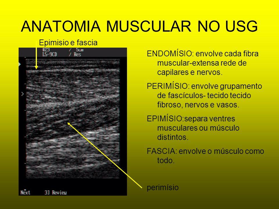 ANATOMIA MUSCULAR NO USG ENDOMÍSIO: envolve cada fibra muscular-extensa rede de capilares e nervos. PERIMÍSIO: envolve grupamento de fascículos- tecid