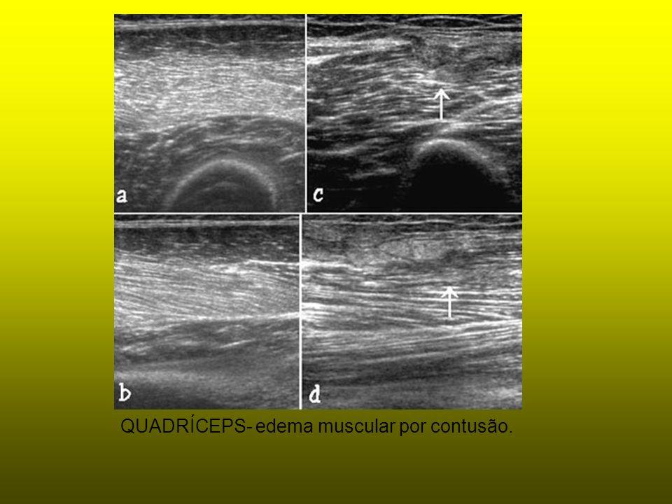 QUADRÍCEPS- edema muscular por contusão.