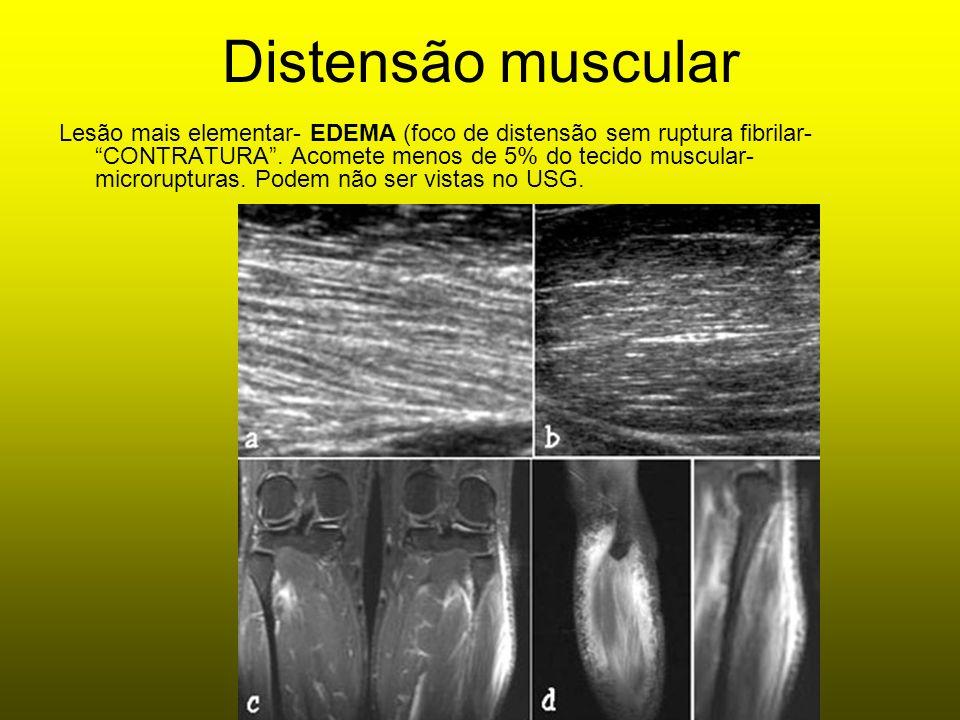 Distensão muscular Lesão mais elementar- EDEMA (foco de distensão sem ruptura fibrilar- CONTRATURA. Acomete menos de 5% do tecido muscular- microruptu