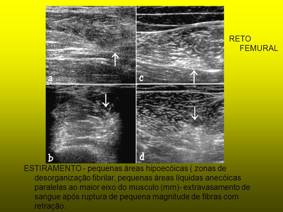 ESTIRAMENTO - pequenas áreas hipoecóicas ( zonas de desorganização fibrilar, pequenas áreas líquidas anecóicas paralelas ao maior eixo do musculo (mm)