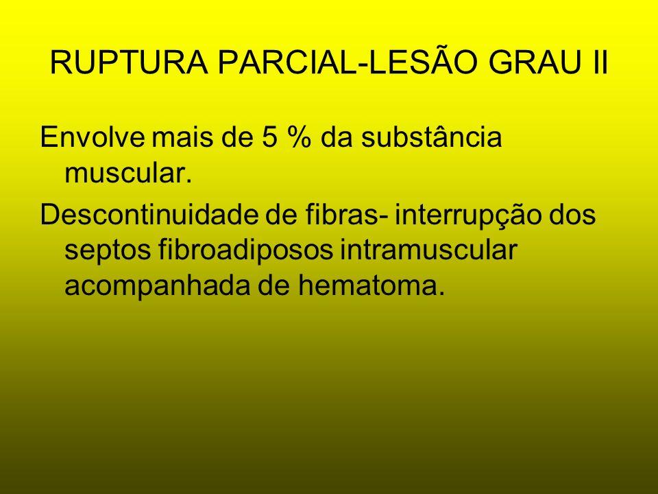RUPTURA PARCIAL-LESÃO GRAU II Envolve mais de 5 % da substância muscular. Descontinuidade de fibras- interrupção dos septos fibroadiposos intramuscula