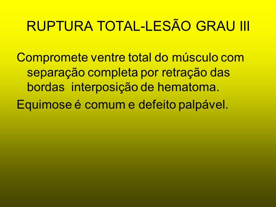 RUPTURA TOTAL-LESÃO GRAU III Compromete ventre total do músculo com separação completa por retração das bordas interposição de hematoma. Equimose é co