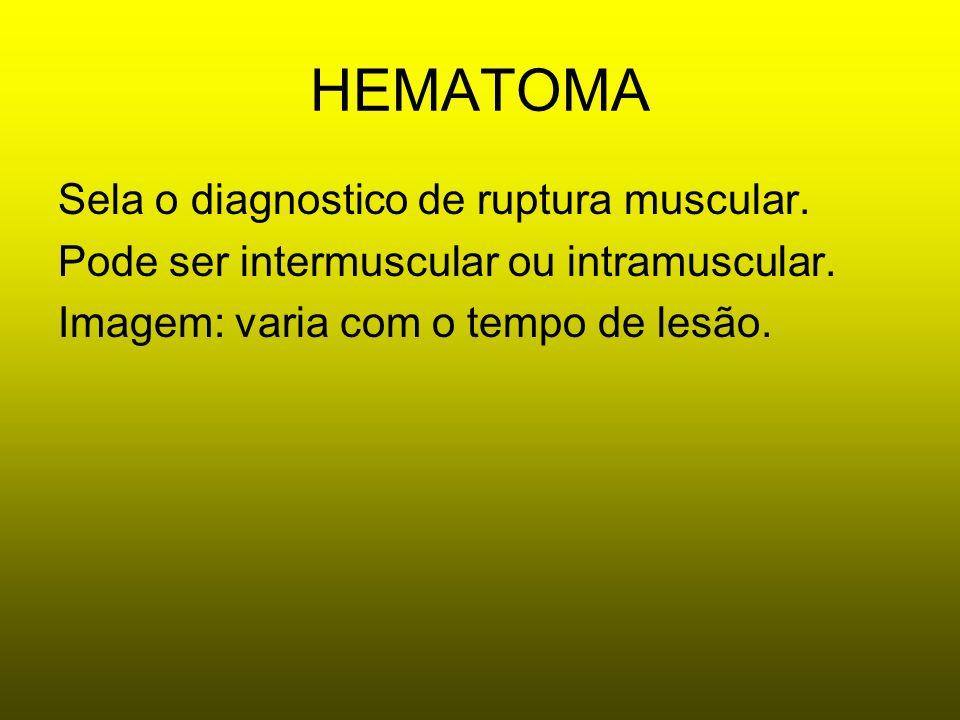HEMATOMA Sela o diagnostico de ruptura muscular. Pode ser intermuscular ou intramuscular. Imagem: varia com o tempo de lesão.