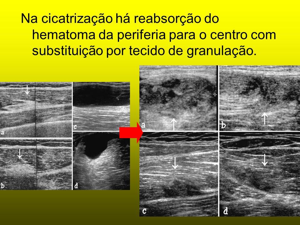 Na cicatrização há reabsorção do hematoma da periferia para o centro com substituição por tecido de granulação.