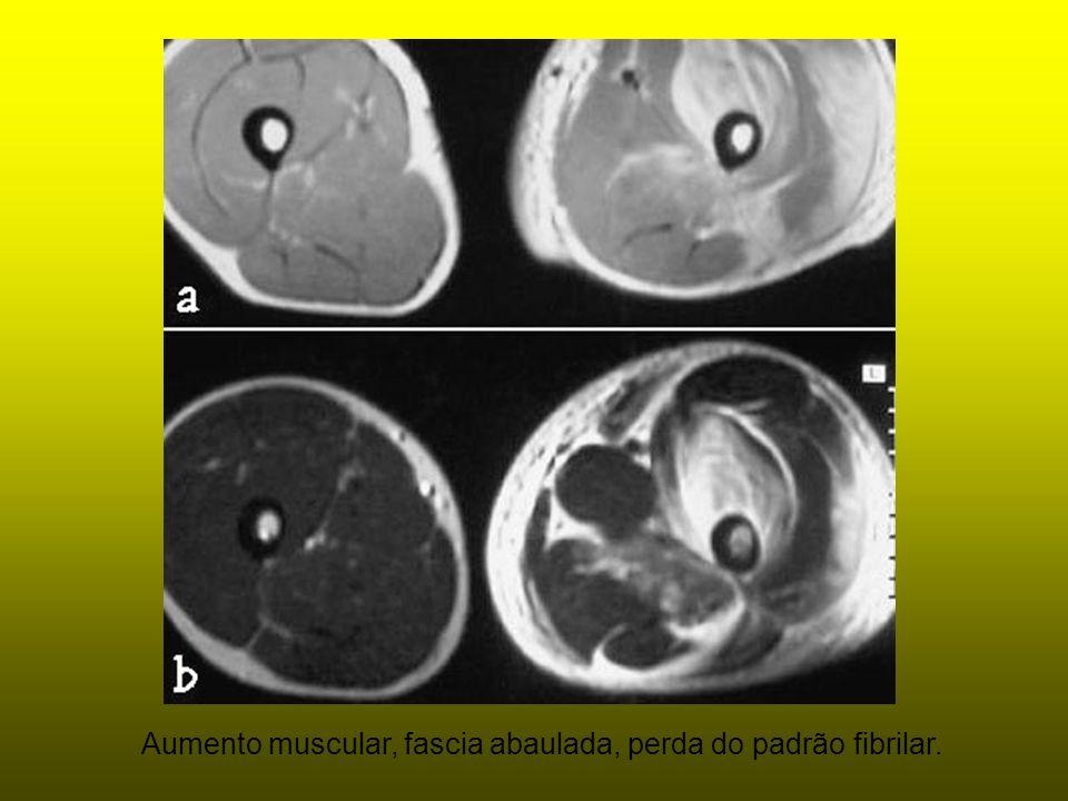Aumento muscular, fascia abaulada, perda do padrão fibrilar.