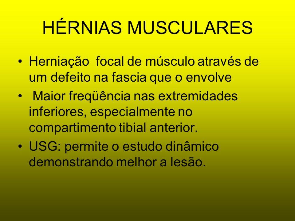 HÉRNIAS MUSCULARES Herniação focal de músculo através de um defeito na fascia que o envolve Maior freqüência nas extremidades inferiores, especialment