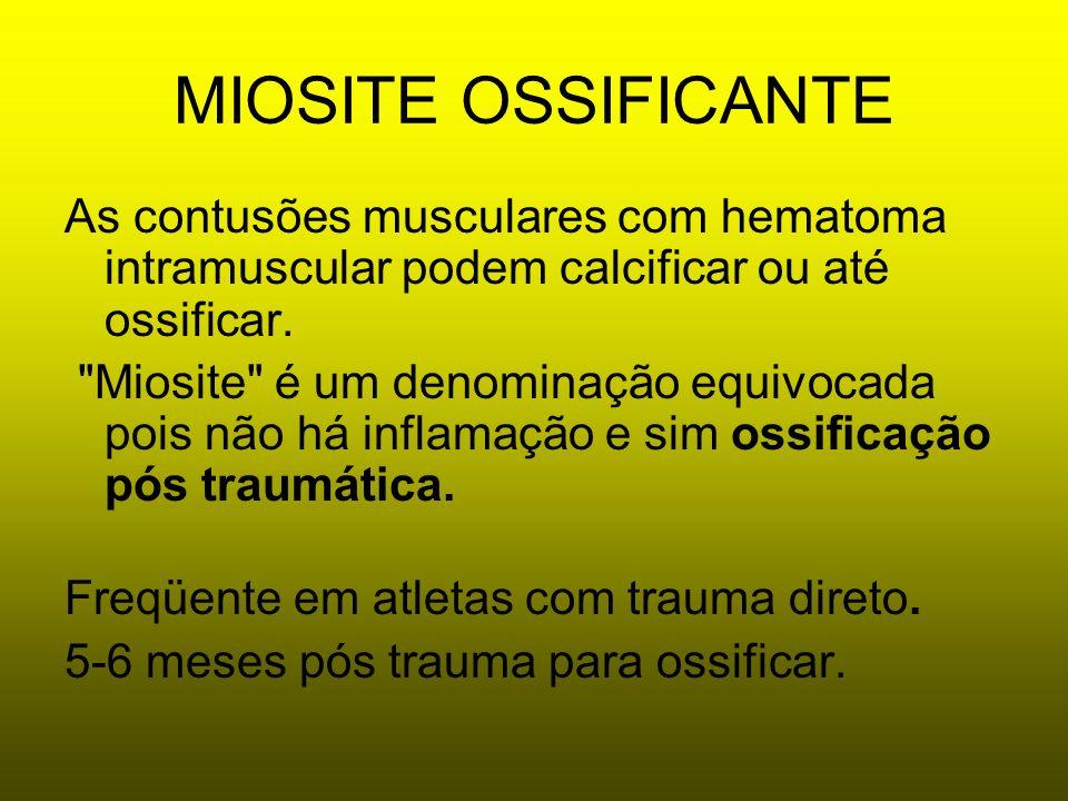 MIOSITE OSSIFICANTE As contusões musculares com hematoma intramuscular podem calcificar ou até ossificar.