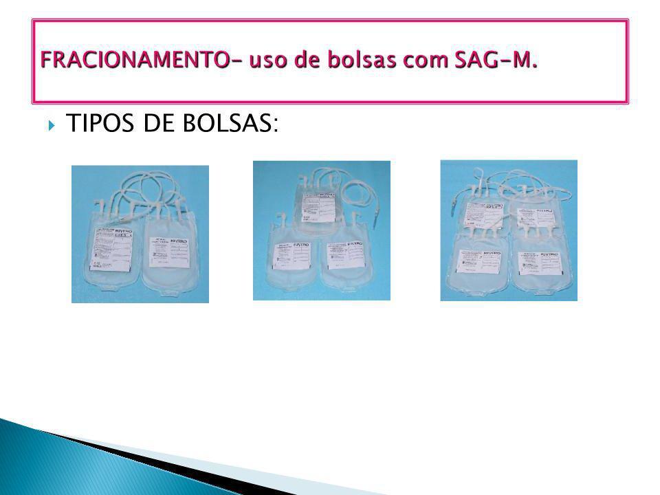 TIPOS DE BOLSAS: