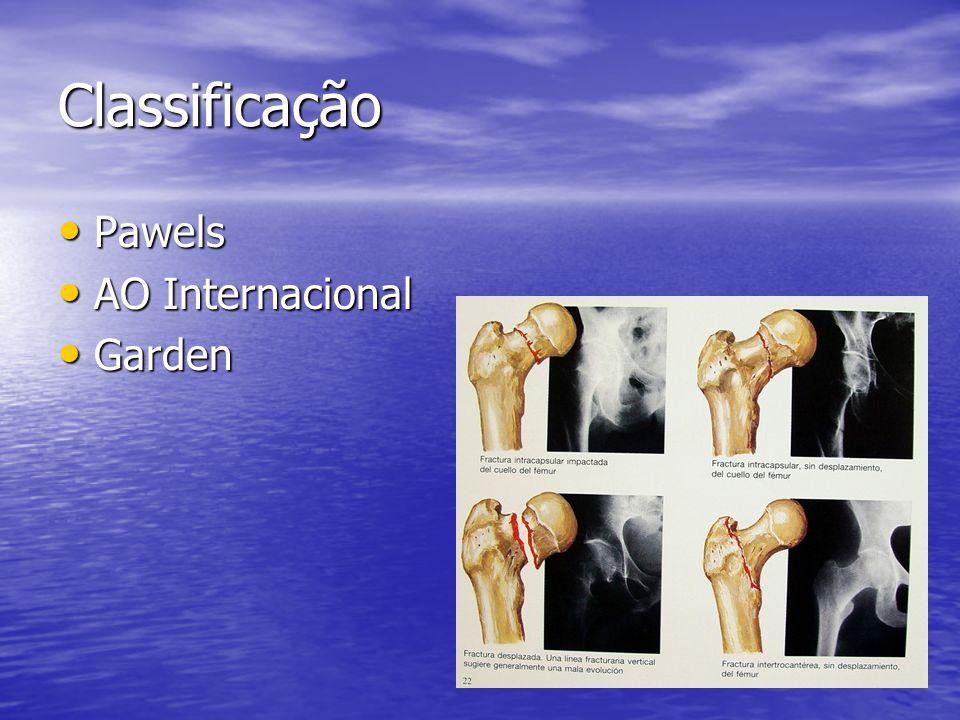 Classificação Pawels Pawels AO Internacional AO Internacional Garden Garden