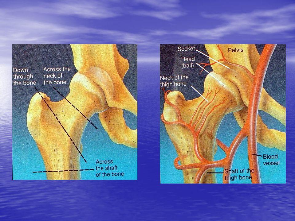 Tratamento Conservador Conservador Cirúrgico –------ preferencial Cirúrgico –------ preferencial #Osteossíntese #Osteossíntese - Pinos - Pinos - Placa - Placa # Artroplastia # Artroplastia - Parcial - Parcial - Total - Total