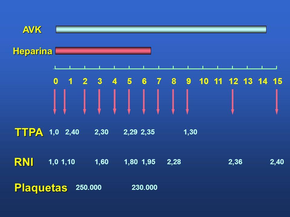 TTPA 2,40 RNI 1,01,101,601,952,281,802,36 Heparina AVK Plaquetas 250.000230.000 1,02,402,302,292,351,30 0123456789101112131415