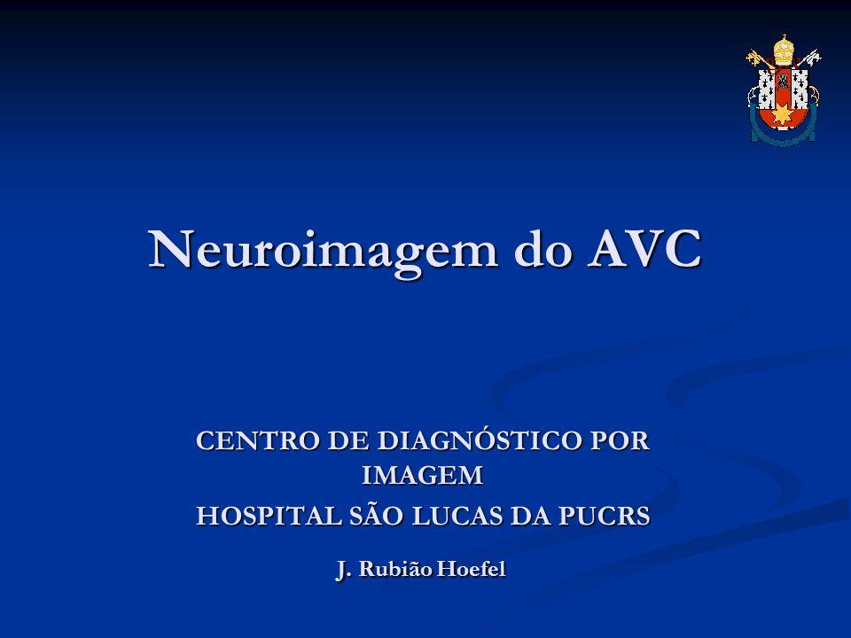 Neuroimagem do AVC CENTRO DE DIAGNÓSTICO POR IMAGEM HOSPITAL SÃO LUCAS DA PUCRS HOSPITAL SÃO LUCAS DA PUCRS J. Rubião Hoefel J. Rubião Hoefel