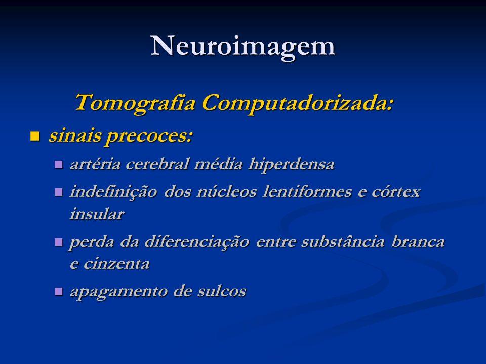 Neuroimagem Tomografia Computadorizada: Tomografia Computadorizada: sinais precoces: sinais precoces: artéria cerebral média hiperdensa artéria cerebr