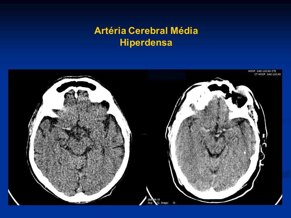 Artéria Cerebral Média Hiperdensa