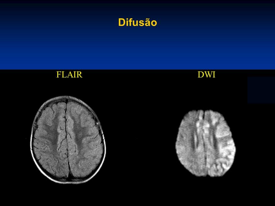 Difusão FLAIRDWI
