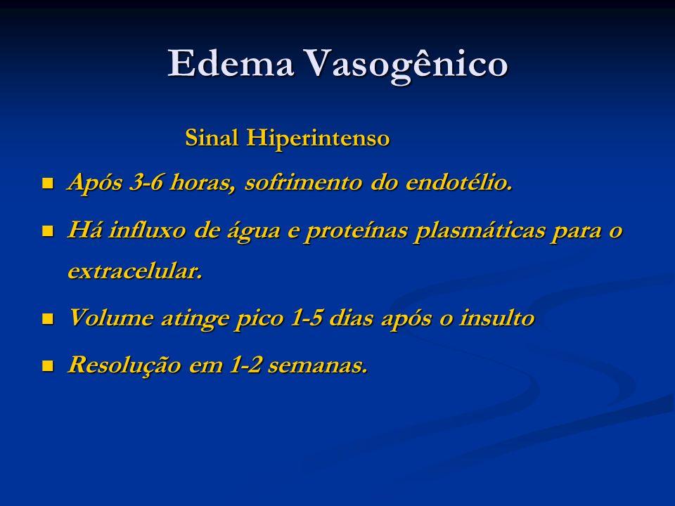 Edema Vasogênico Sinal Hiperintenso Sinal Hiperintenso Após 3-6 horas, sofrimento do endotélio. Após 3-6 horas, sofrimento do endotélio. Há influxo de