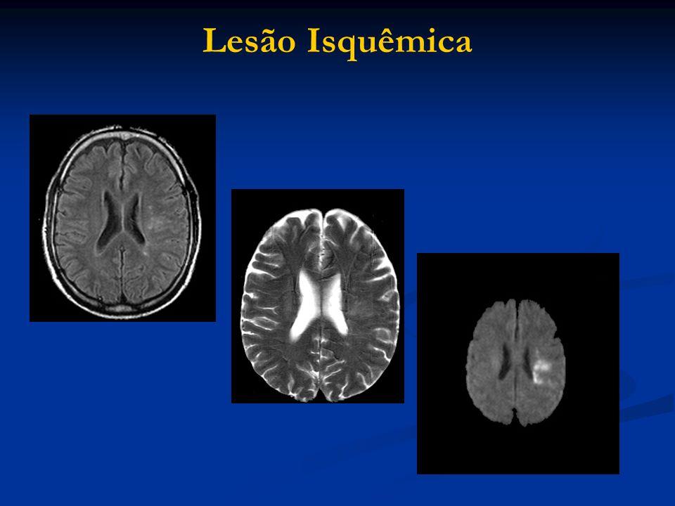 Lesão Isquêmica