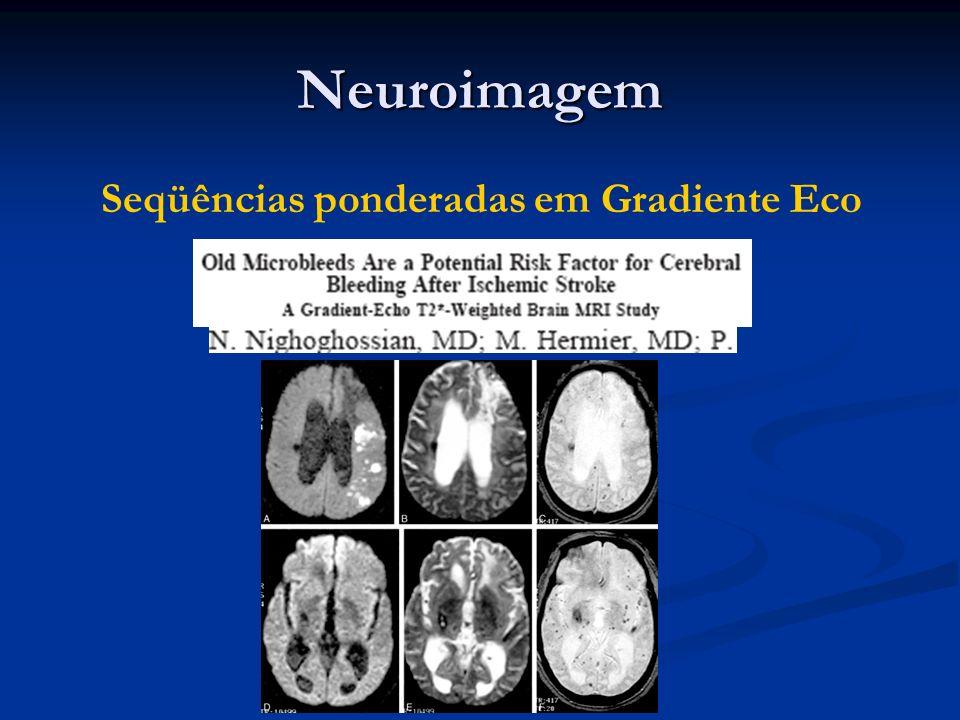 Neuroimagem Seqüências ponderadas em Gradiente Eco