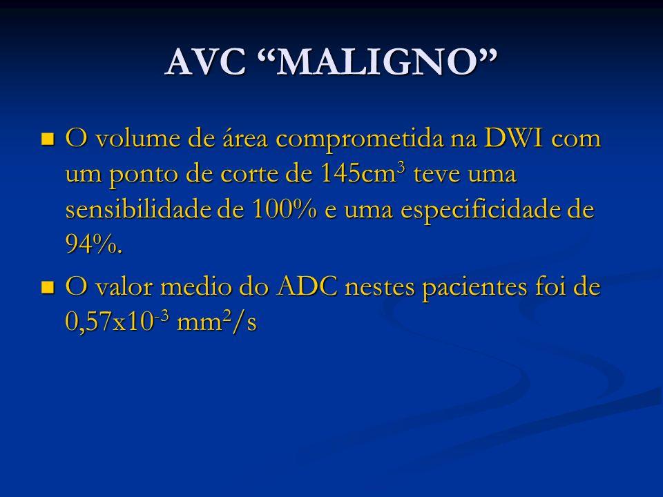 AVC MALIGNO O volume de área comprometida na DWI com um ponto de corte de 145cm 3 teve uma sensibilidade de 100% e uma especificidade de 94%. O volume