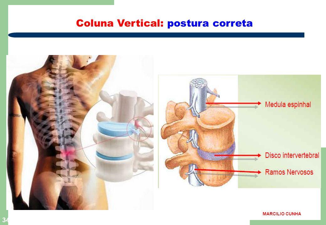 33 Classificação da Ergonomia ergonomia seletiva Exemplo: pessoas predisposta a lombagias ( dores lombares ) não devem ser selecionadas lombares ) não