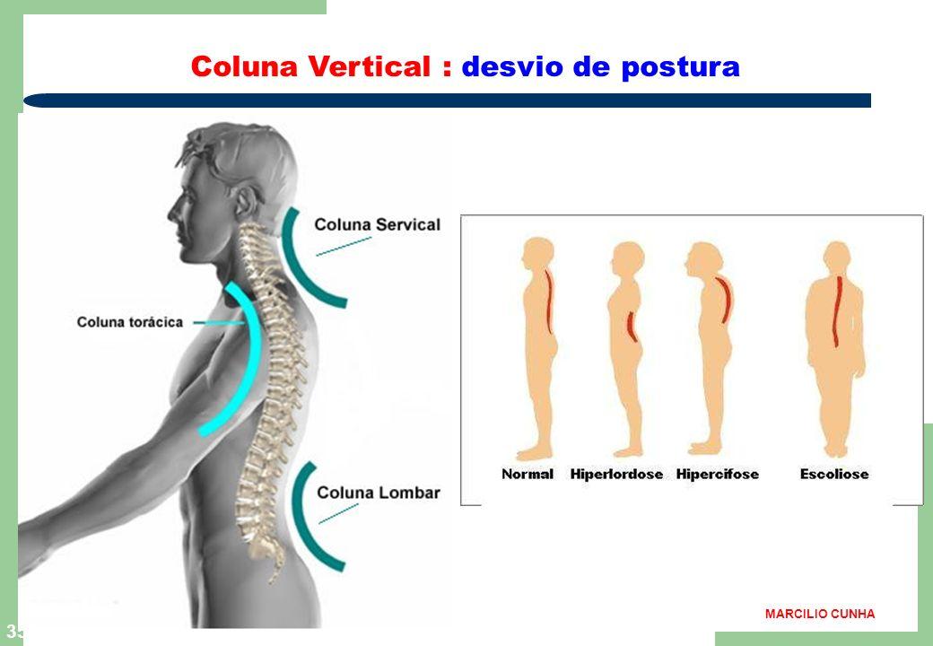 34 Coluna Vertical: postura correta MARCILIO CUNHA