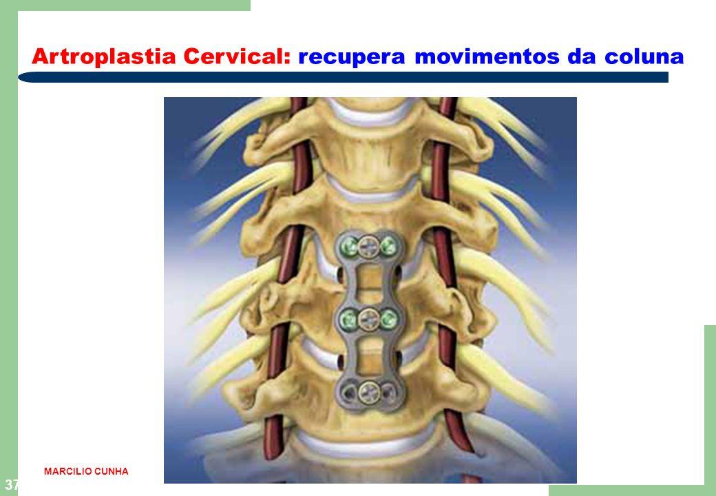 36 Coluna Vertical: ortopedia e traumatologia