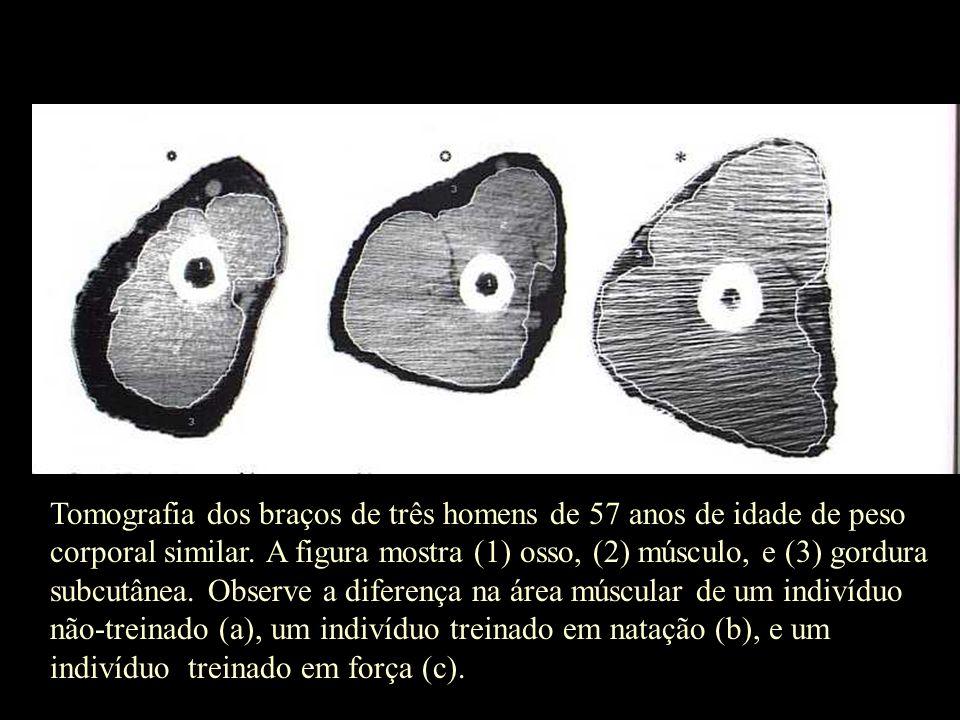 Tomografia dos braços de três homens de 57 anos de idade de peso corporal similar. A figura mostra (1) osso, (2) músculo, e (3) gordura subcutânea. Ob