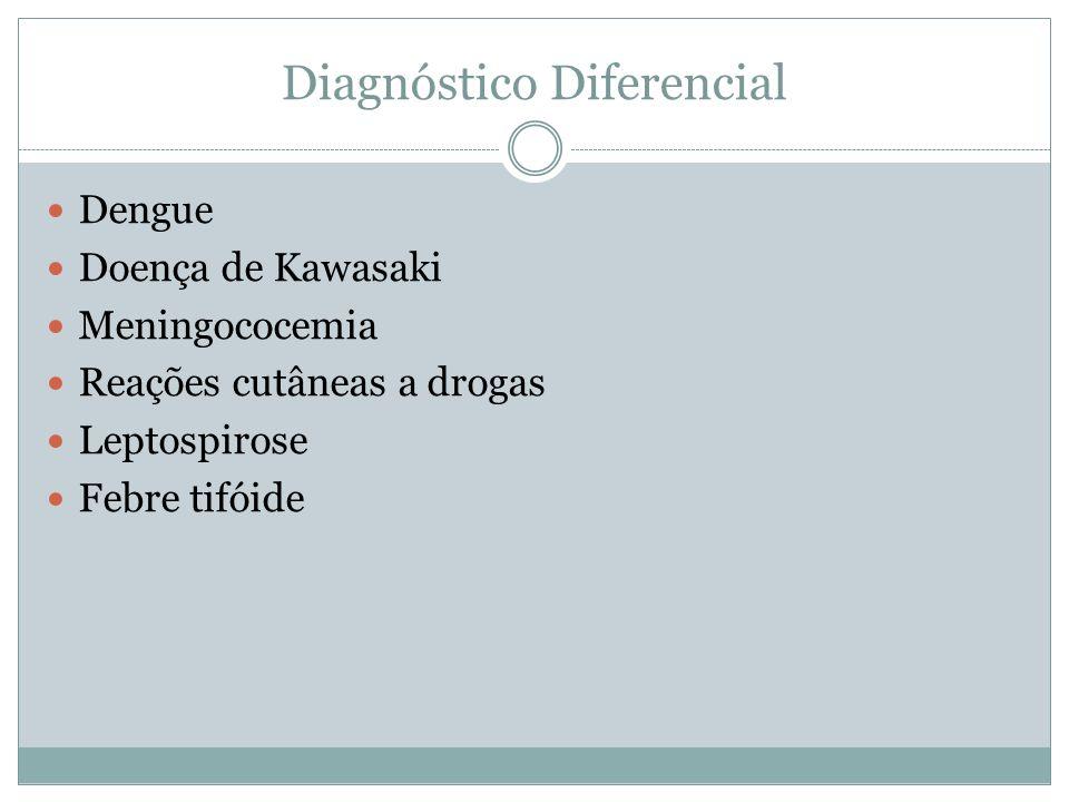Diagnóstico Diferencial Dengue Doença de Kawasaki Meningococemia Reações cutâneas a drogas Leptospirose Febre tifóide