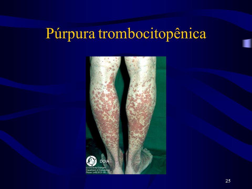 25 Púrpura trombocitopênica