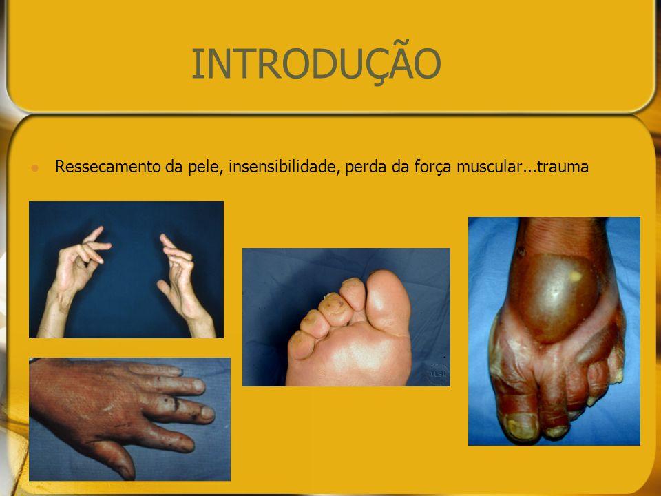 INTRODUÇÃO Recomendado educar o paciente para a prática de Autocuidados para amenizar principalmente lesões de causas neurogênicas secundárias (MS, 2008).