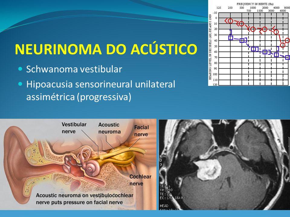 NEURINOMA DO ACÚSTICO Schwanoma vestibular Hipoacusia sensorineural unilateral assimétrica (progressiva)