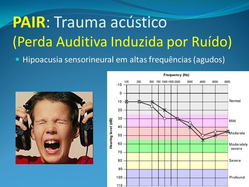 PAIR: Trauma acústico (Perda Auditiva Induzida por Ruído) Hipoacusia sensorineural em altas frequências (agudos)