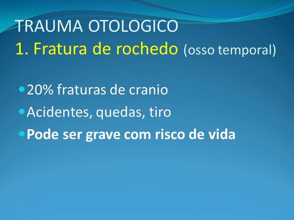TRAUMA OTOLOGICO 1. Fratura de rochedo (osso temporal) 20% fraturas de cranio Acidentes, quedas, tiro Pode ser grave com risco de vida