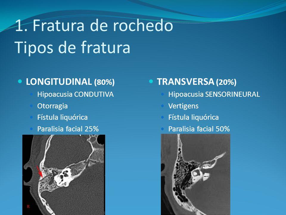 1. Fratura de rochedo Tipos de fratura LONGITUDINAL (80%) Hipoacusia CONDUTIVA Otorragia Fístula liquórica Paralisia facial 25% TRANSVERSA (20%) Hipoa