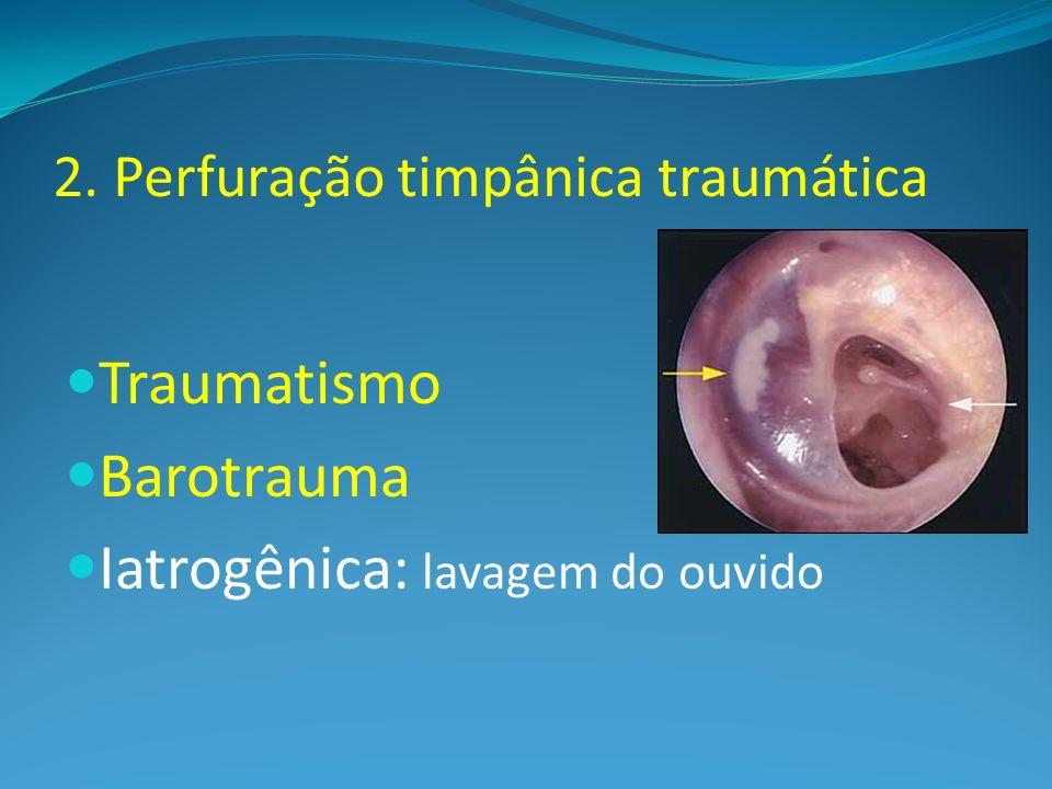 2. Perfuração timpânica traumática Traumatismo Barotrauma Iatrogênica: lavagem do ouvido