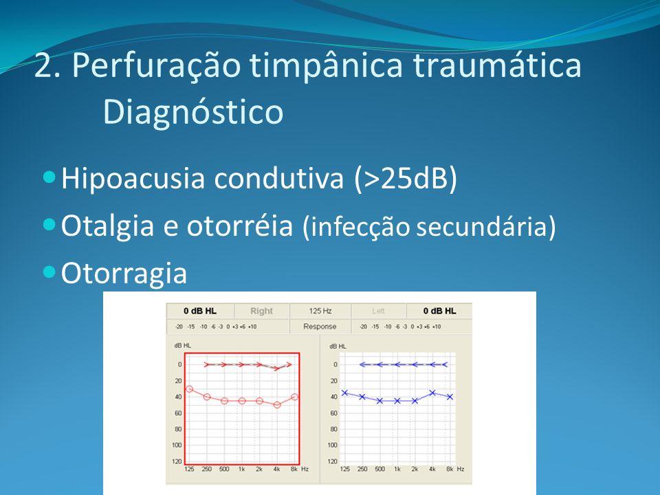 2. Perfuração timpânica traumática Diagnóstico Hipoacusia condutiva (>25dB) Otalgia e otorréia (infecção secundária) Otorragia
