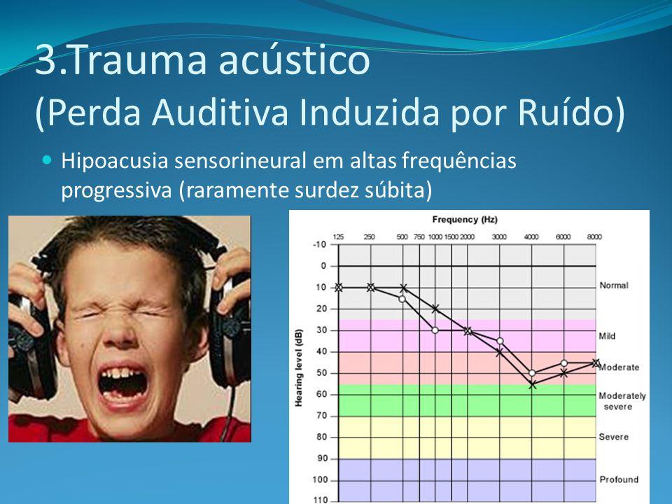 3.Trauma acústico (Perda Auditiva Induzida por Ruído) Hipoacusia sensorineural em altas frequências progressiva (raramente surdez súbita)
