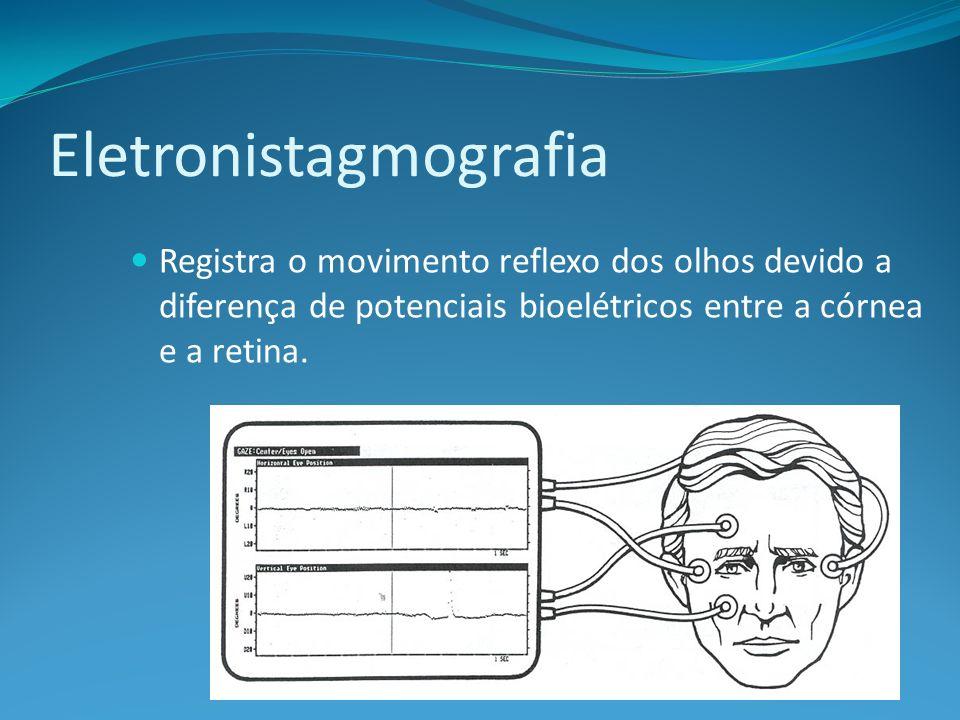 Eletronistagmografia Registra o movimento reflexo dos olhos devido a diferença de potenciais bioelétricos entre a córnea e a retina.