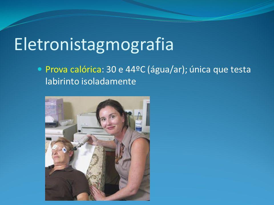 Eletronistagmografia Prova calórica: 30 e 44ºC (água/ar); única que testa labirinto isoladamente