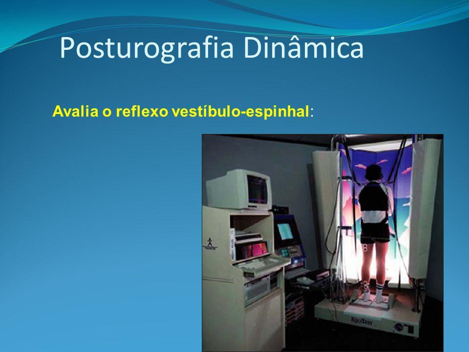 Posturografia Dinâmica Avalia o reflexo vestíbulo-espinhal: