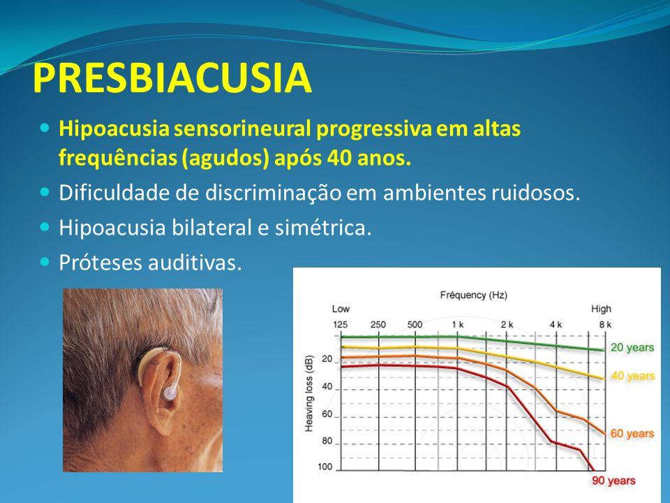 PRESBIACUSIA Hipoacusia sensorineural progressiva em altas frequências (agudos) após 40 anos. Dificuldade de discriminação em ambientes ruidosos. Hipo