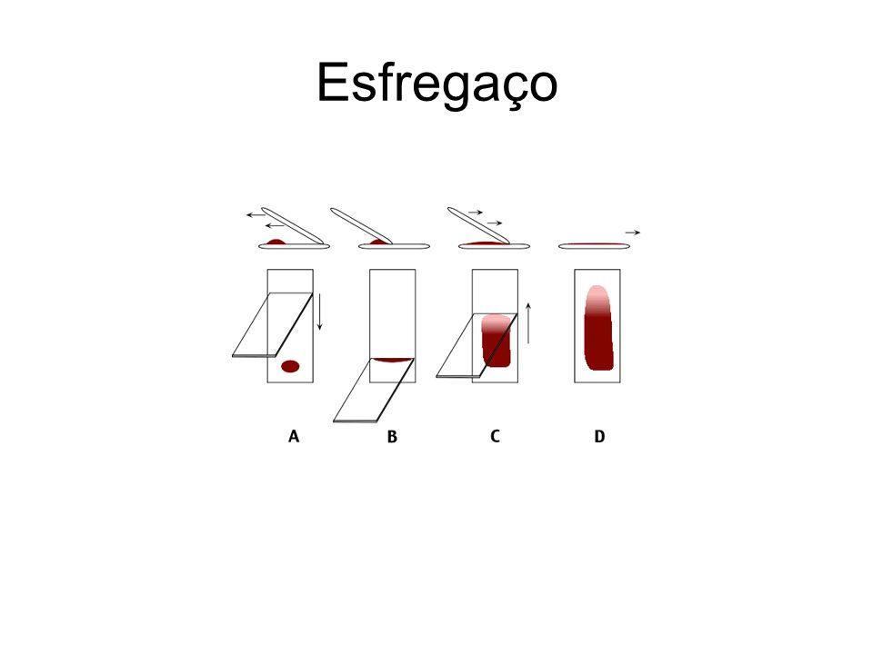 Reticulócitos São hemácias jovens que contêm grânulos de RNA Após dois a três dias na circulação, eles perdem estes grânulos e se convertem em hemácias maduras Representam a eficácia da eritropoese em sintetizar e liberar hemácias em resposta a estímulos fisiológicos (renovação) ou patológicos (anemia) Normalmente, 0,5% a 1,5% do total do número de hemácias periféricas são reticulócitos, traduzindo a renovação diária do pool de eritrócitos.