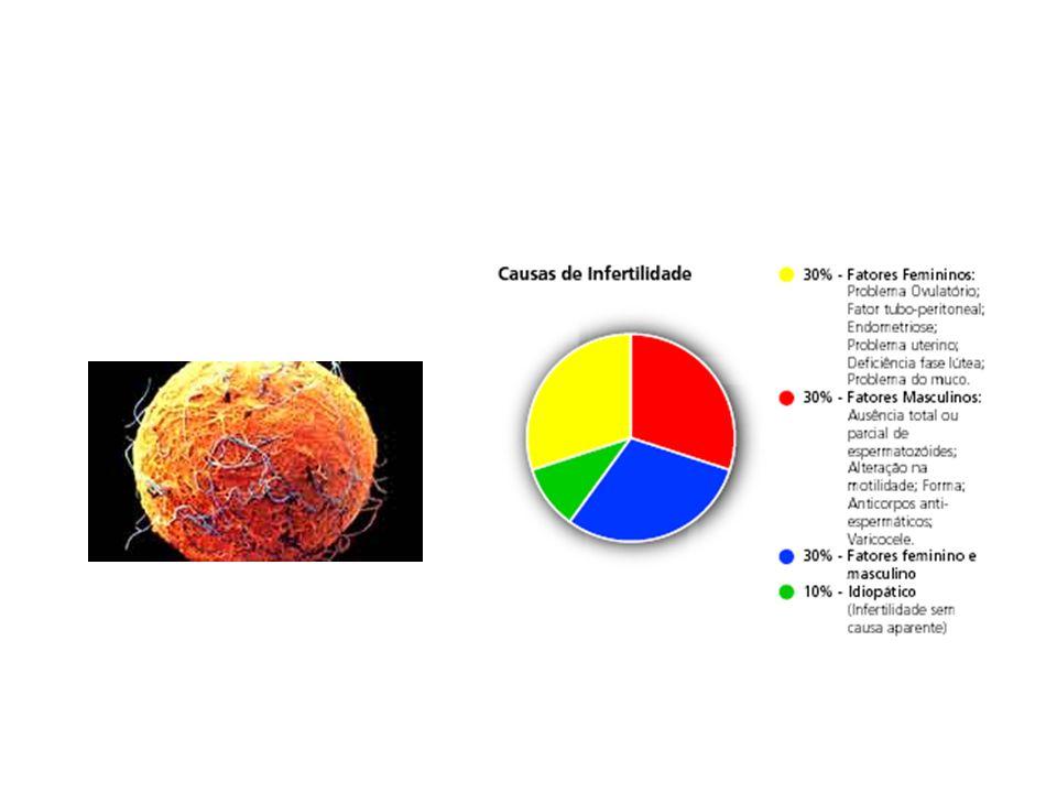Causas genéticas a) Fibrose cística b) Síndrome de Down c) Síndrome de turner d) Síndrome de Klinefelter e) Síndrome de kartagener f) Síndrome da feminilização testicular g) Síndrome do ovário policístico