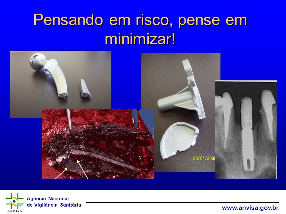 Agência Nacional de Vigilância Sanitária www.anvisa.gov.br Pensando em risco, pense em minimizar!