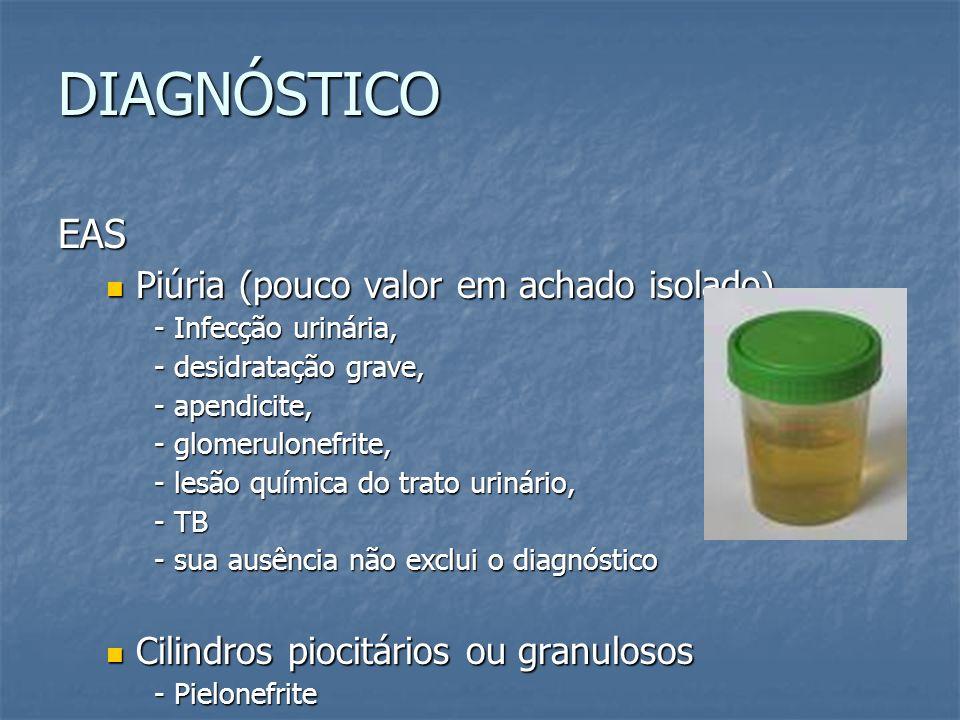 DIAGNÓSTICO EAS Piúria (pouco valor em achado isolado ) Piúria (pouco valor em achado isolado ) - Infecção urinária, - desidratação grave, - apendicit