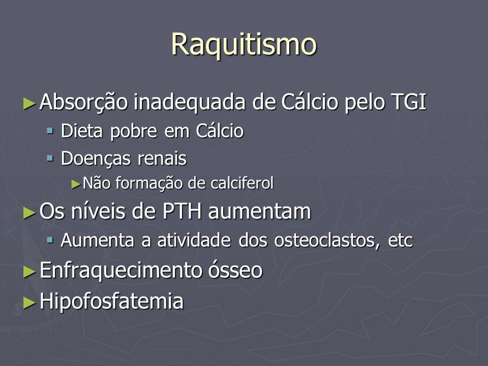 Raquitismo Absorção inadequada de Cálcio pelo TGI Absorção inadequada de Cálcio pelo TGI Dieta pobre em Cálcio Dieta pobre em Cálcio Doenças renais Do